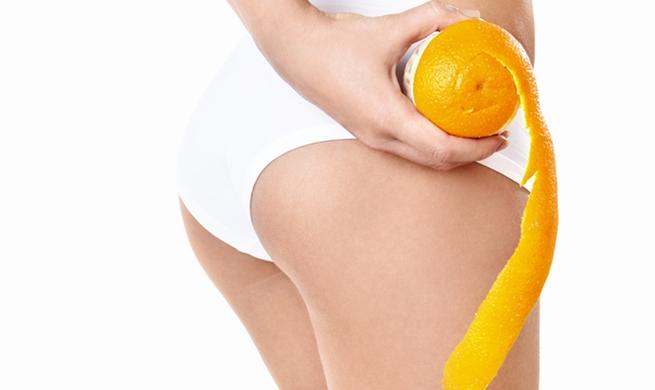 Piel de naranja, qué es y cómo tratarla | Centro de Estética De Piel